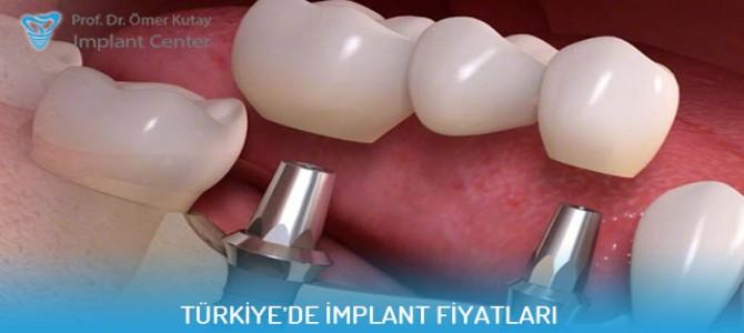 Türkiye'de implant fiyatları